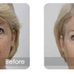 photofacial-fusion-3d-lift-pittsburgh2