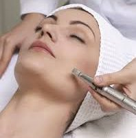 Microneedling Session (With Lori Only)