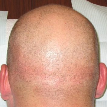Scalp tattooing